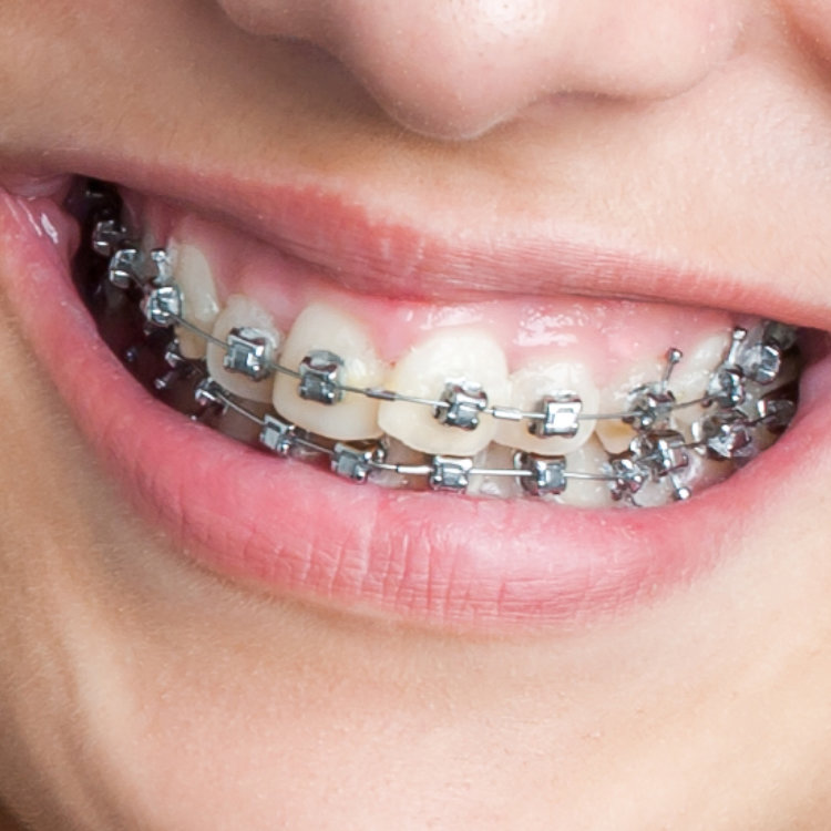 Dental Arts Design - Juana Geldres DDS - West Palm Beach Dentist - Braces