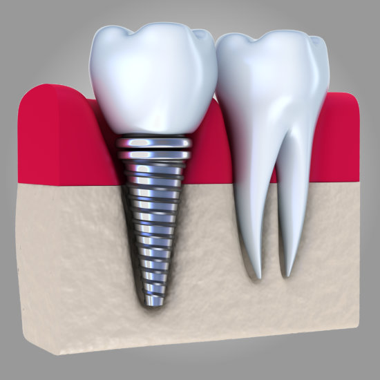 Dental Arts Design - Juana Geldres DDS - Dental Implants