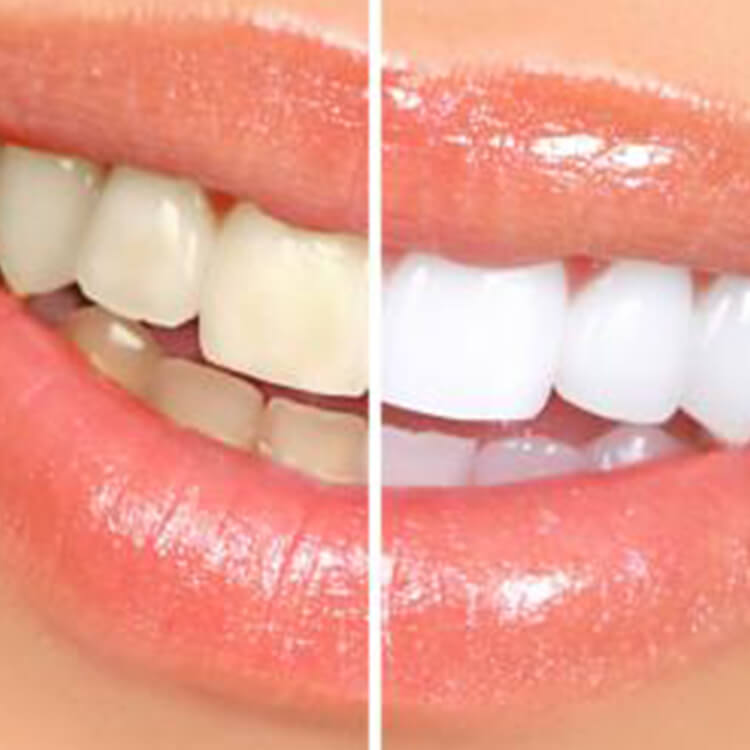 Dental Arts Design - Juana Geldres DDS - Teeth Whitening