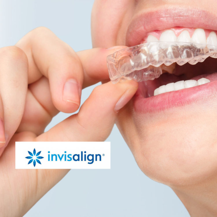 Juana Geldres DDS PA - Dental Art Design - Invisalign
